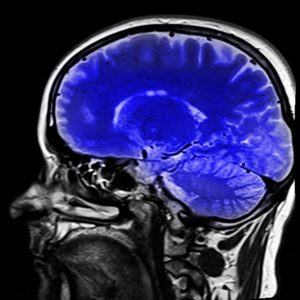 Brain Injury Lawyer Denver